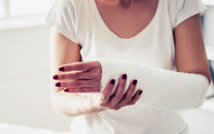 Woman's arm in a cast