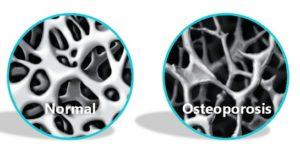 Normal Bone vs Osteoporotic Bone