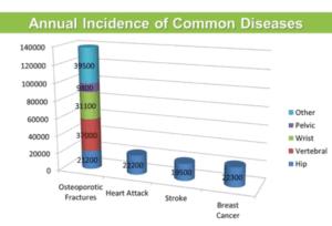 OsPrevalance of Osteoporosis