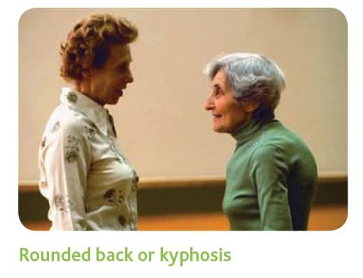 Rounded back or kyphosis