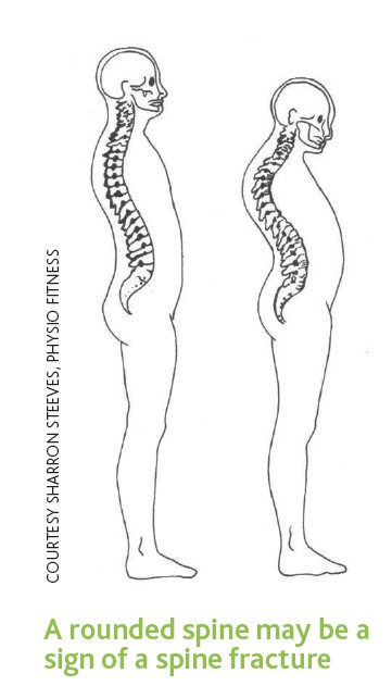 A rounded spine may be a sign of spine fracture