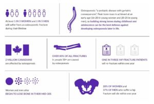Osteoporosis Facts and Statistics Infographic